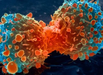Graphene device helps to monitor the progress of an advanced cancer treatment